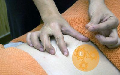 Acupunctuur als behandelmethode.