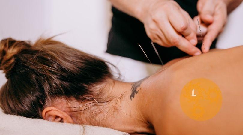 Acupunctuur. Eng of heilzaam?